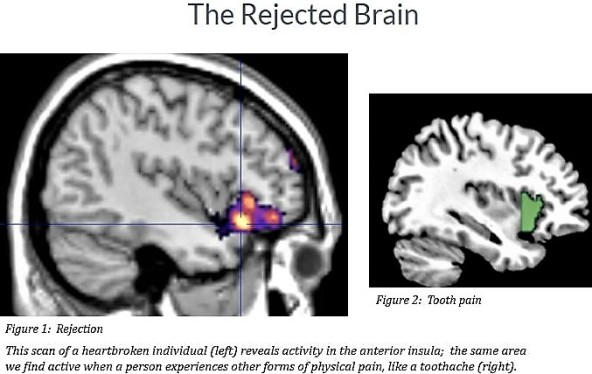 rejection-in-the-brain